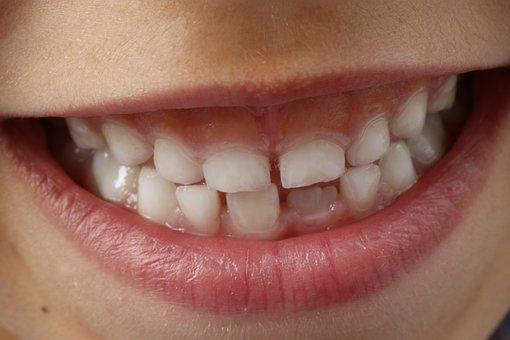 teeth-1743981__340